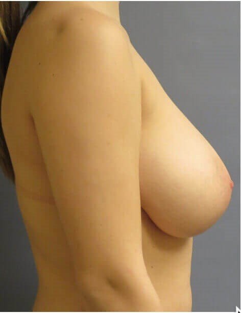 BREAST LIFTING SIDE VIEW Before