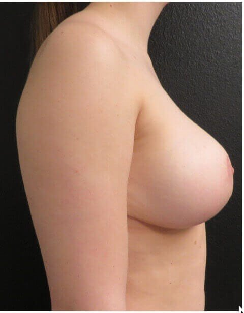 BREAST LIFTING SIDE VIEW After