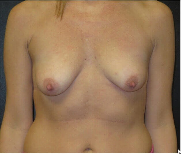 BREAST LIFT 350CC SILICONE Before