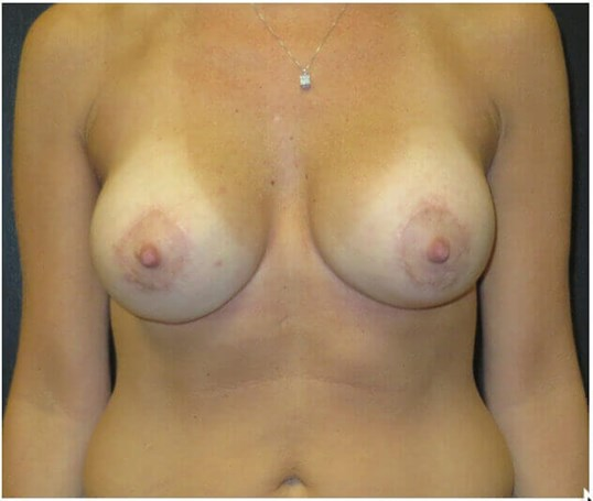 BREAST LIFT 350CC SILICONE After