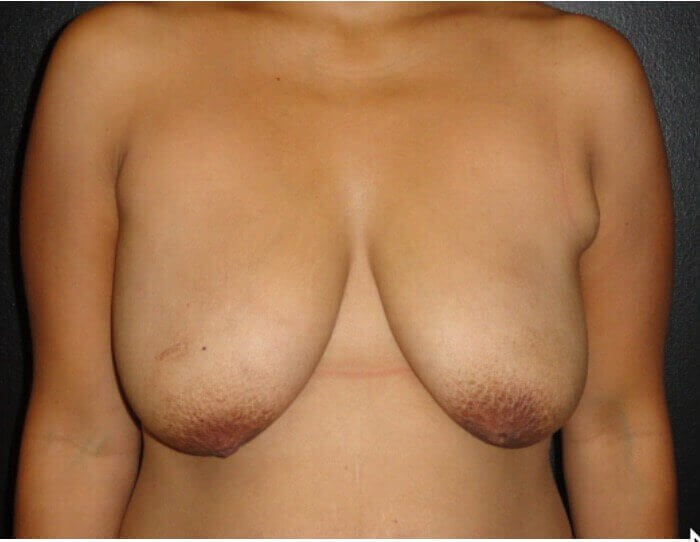 BREAST LIFTING Before
