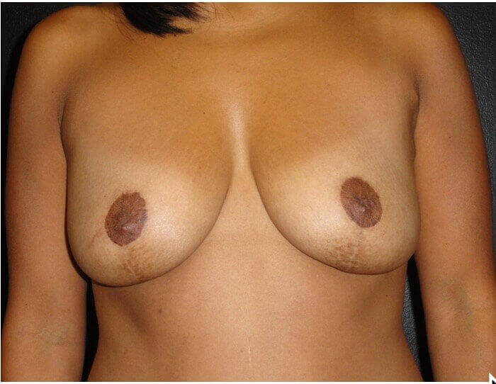BREAST LIFTING After