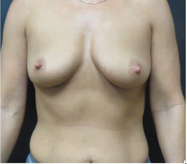 BREAST LIFT WITH INTERNAL BRA Before