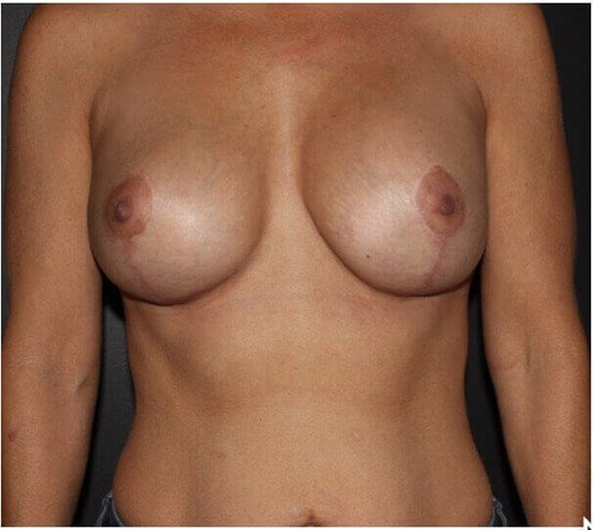BREAST LIFT WITH INTERNAL BRA After