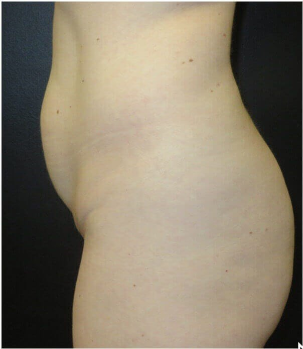 SIDE VIEW OF MINI TUMMY TUCK Before