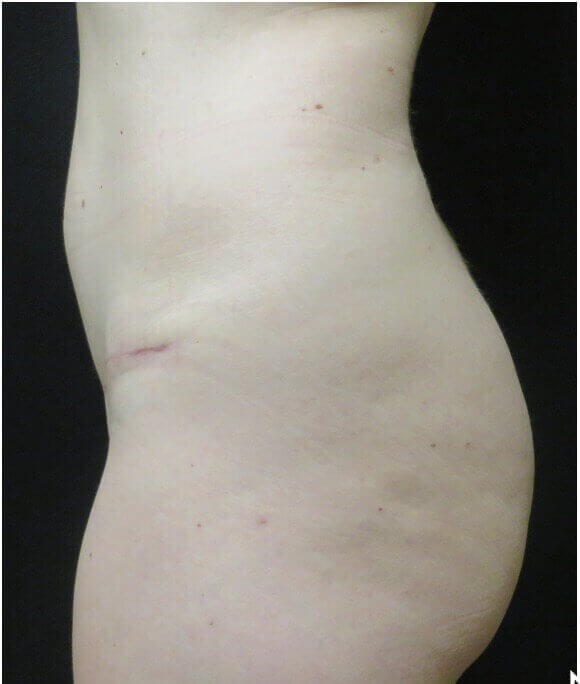 SIDE VIEW OF MINI TUMMY TUCK After