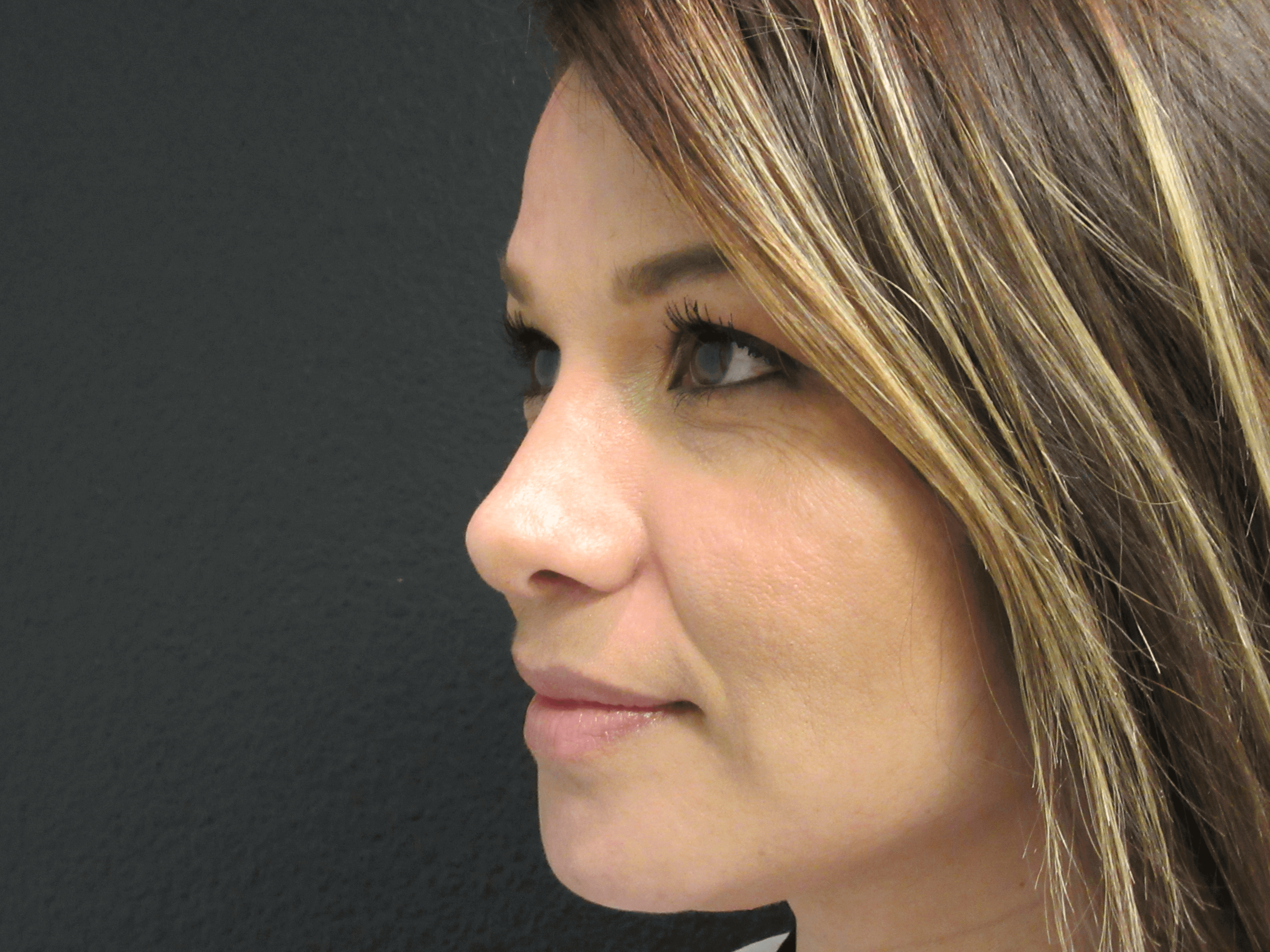 SIDE VIEW OF NOSE RESHAPING After