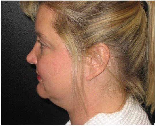 Under Chin Liposuction Before