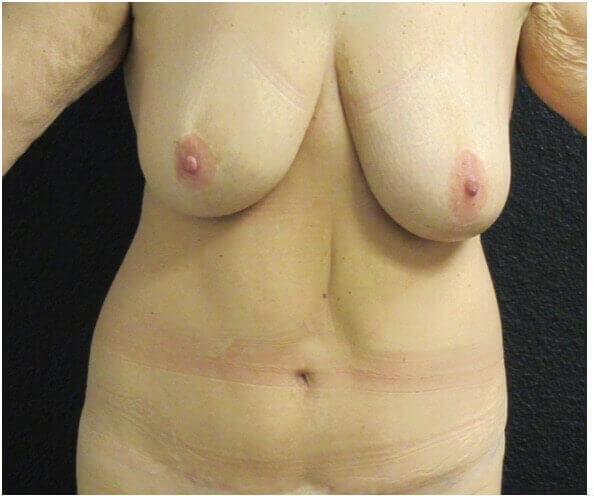 Reverse Tummy Tuck Before