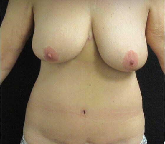 Reverse Tummy Tuck After