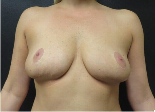Reverse Tummy Tuck Scar Before