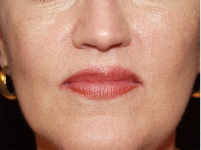 Upper & Lower Lip Lifts After