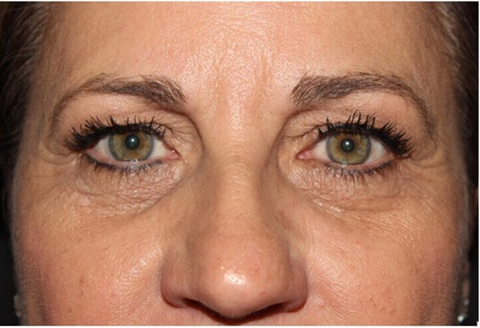 Upper & Lower Eyelid Procedure Before