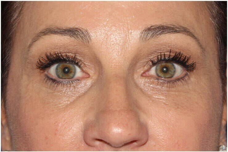 Upper & Lower Eyelid Procedure After