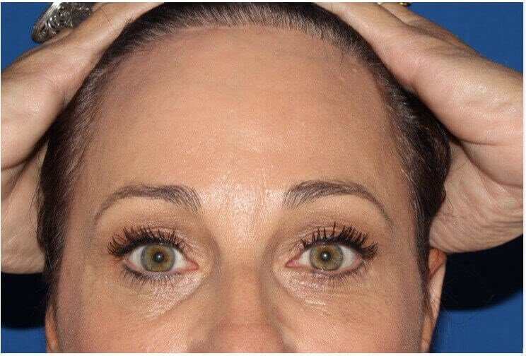 Forehead Lift At Hairline After