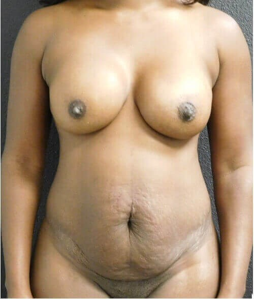 African American New Body Before