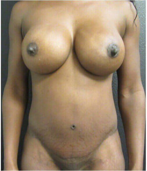 African American New Body After