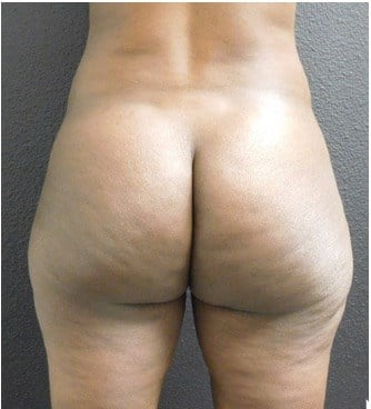 Liposuction Part of Makeover Before