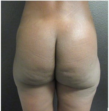THIGH RESHAPING BY LIPOSUCTION After