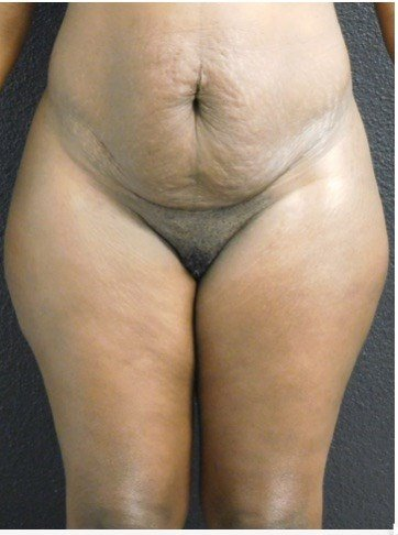 Front View Liposuction Before