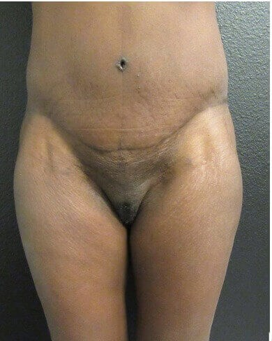Front View Liposuction After
