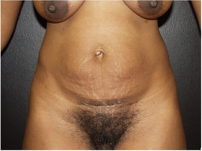 BODY MAKEOVER FOR AFRICAN MOM Before