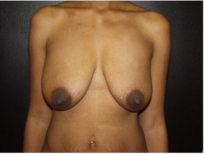 Breast Lifting Makeover Before