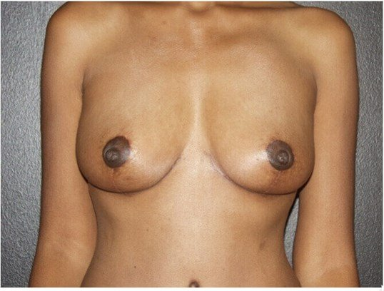Breast Lifting Makeover After