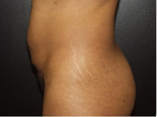 Side Tummy Tuck Before