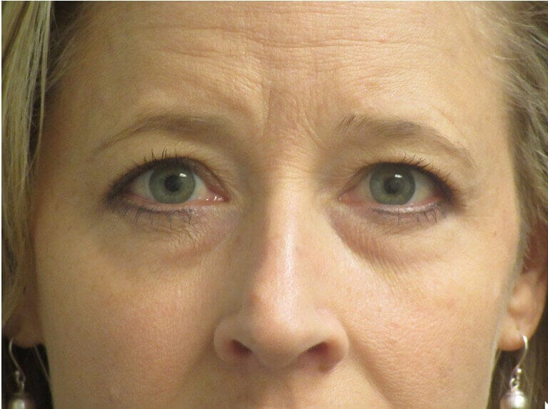 Eyelid Surgery Brightens Face Before