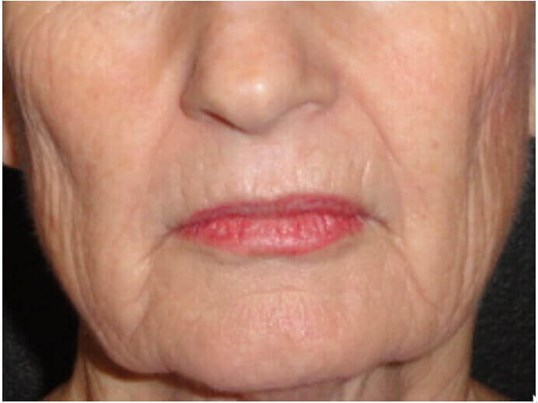 Dermabrasion Gets Rid of Lines Before