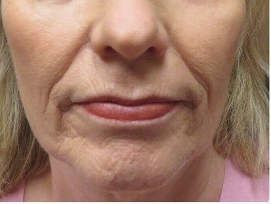 Dermabrasion Softens Lines Before
