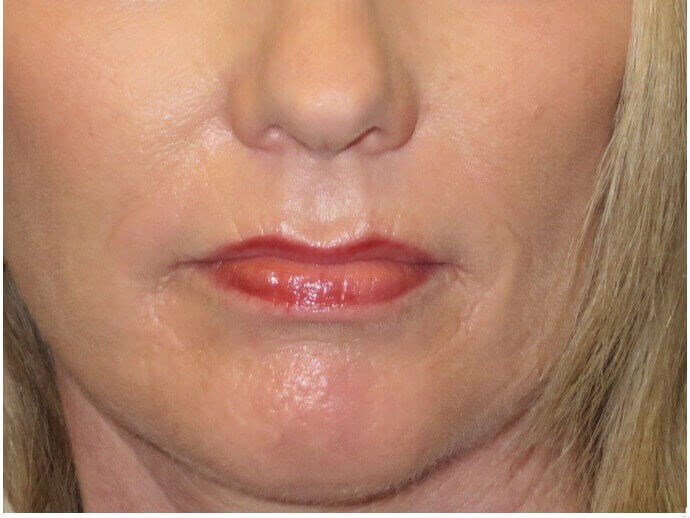 Dermabrasion Softens Lines After