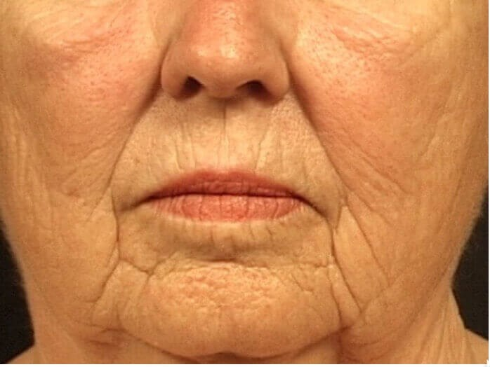 FACIAL LINES REMOVED BY YAKER Before