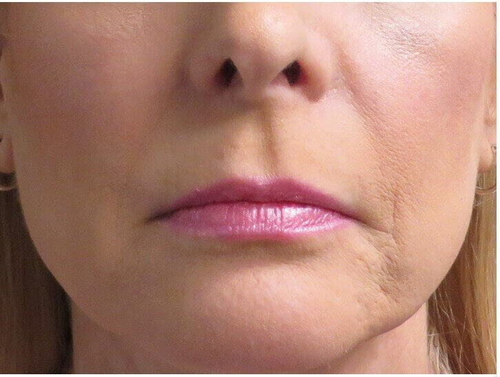Patient Wanted Fuller Lips Before