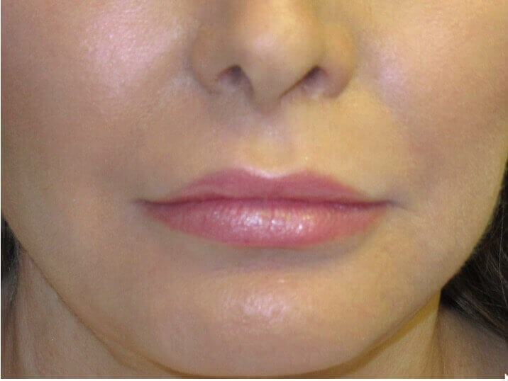 Patient Wanted Fuller Lips After