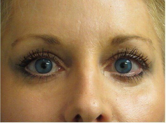 Eyelids Surgery Brightens Face After