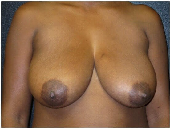 BREAST REDUCTION AND LIFTING Before