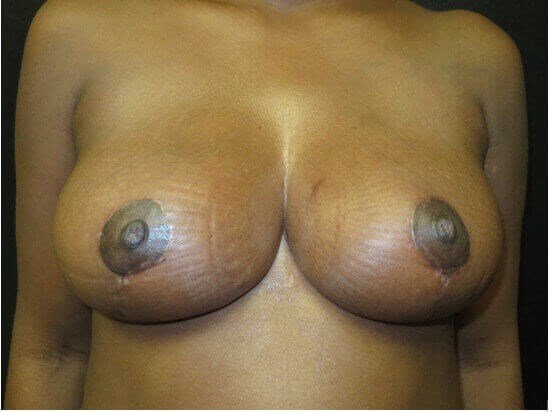 BREAST REDUCTION AND LIFTING After