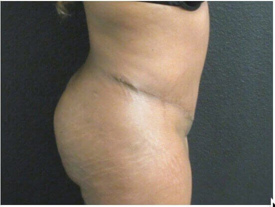 Side View Tummy Tuck After