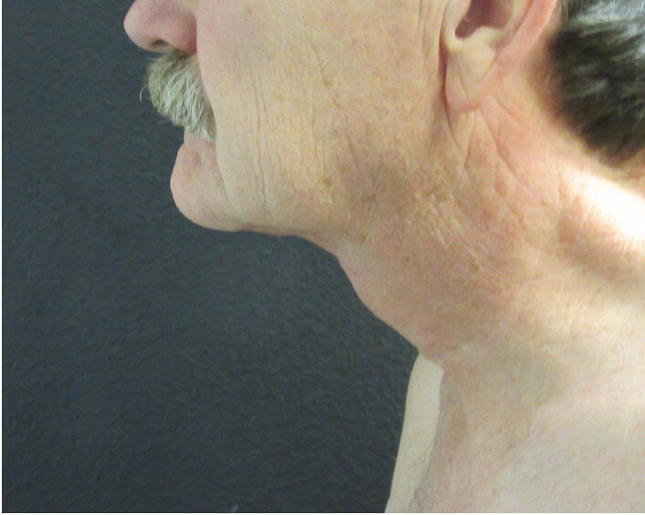 Profile View Direct Neck Lift After