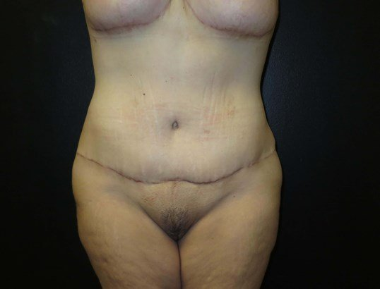 Front View Stomach After