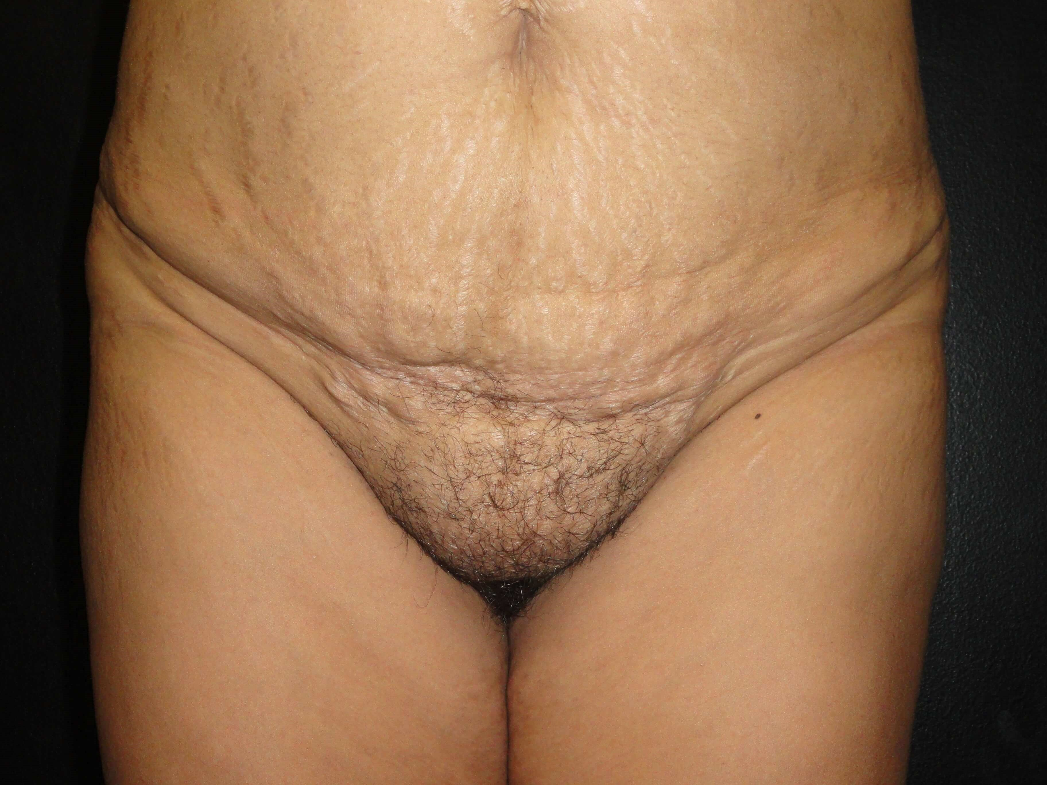 Front View - Pubic Region Before