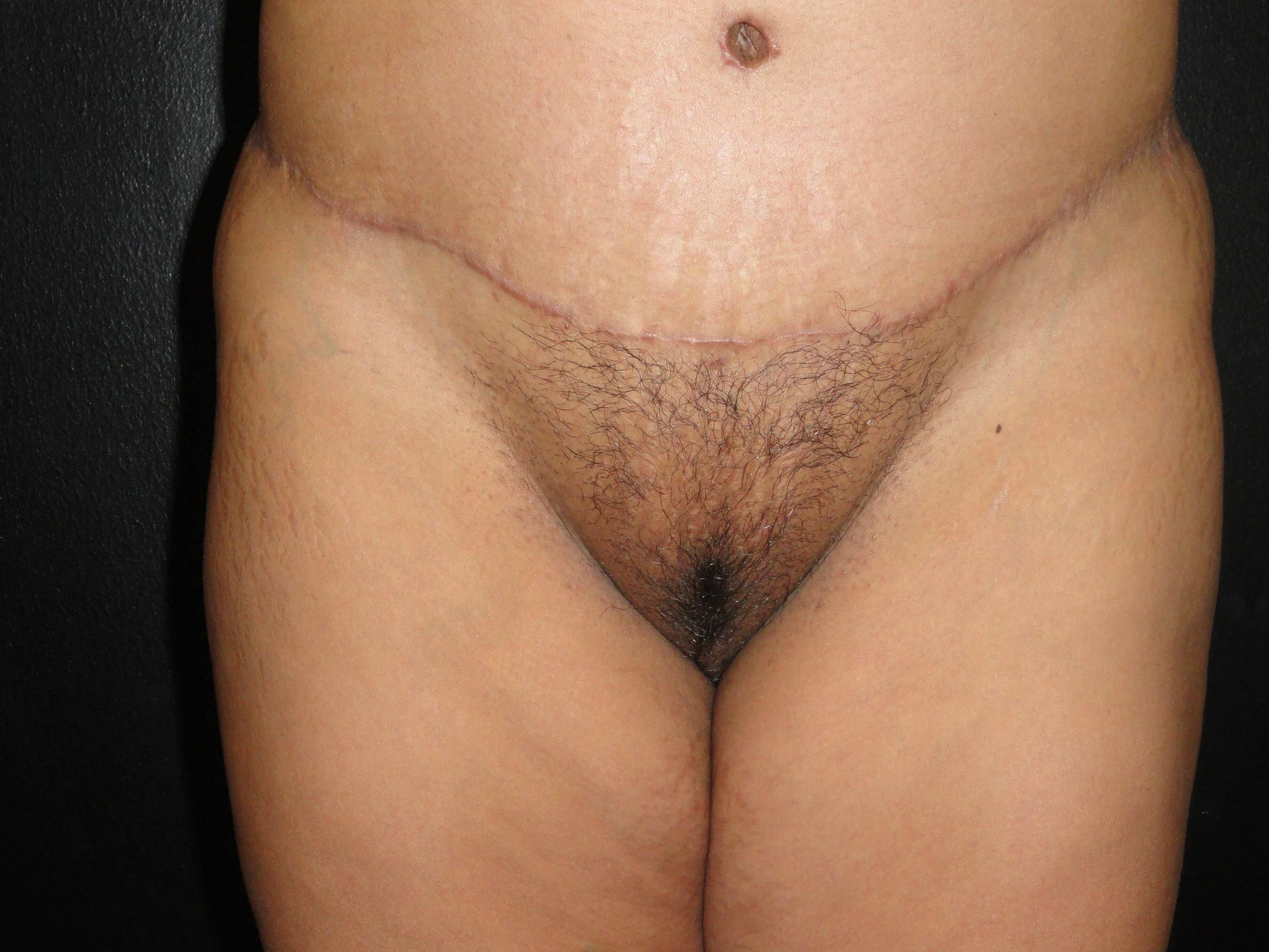 Front View - Pubic Region After