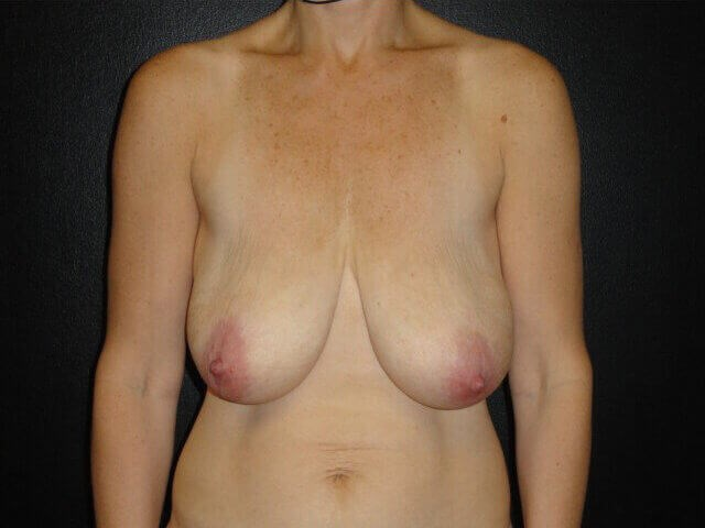 Showing Abdomen & Breast Preop Before