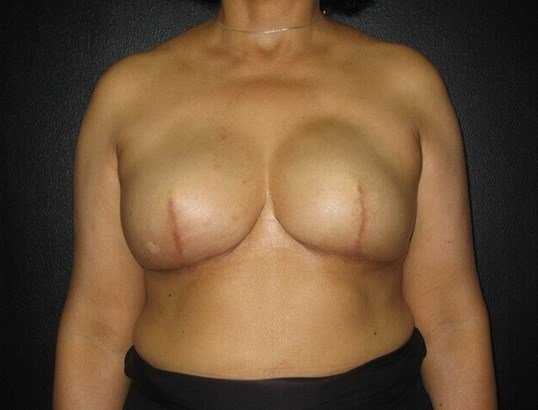 Nipple & Areola Reconstruction Before