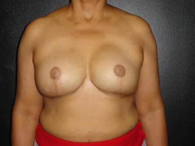 Nipple & Areola Reconstruction After