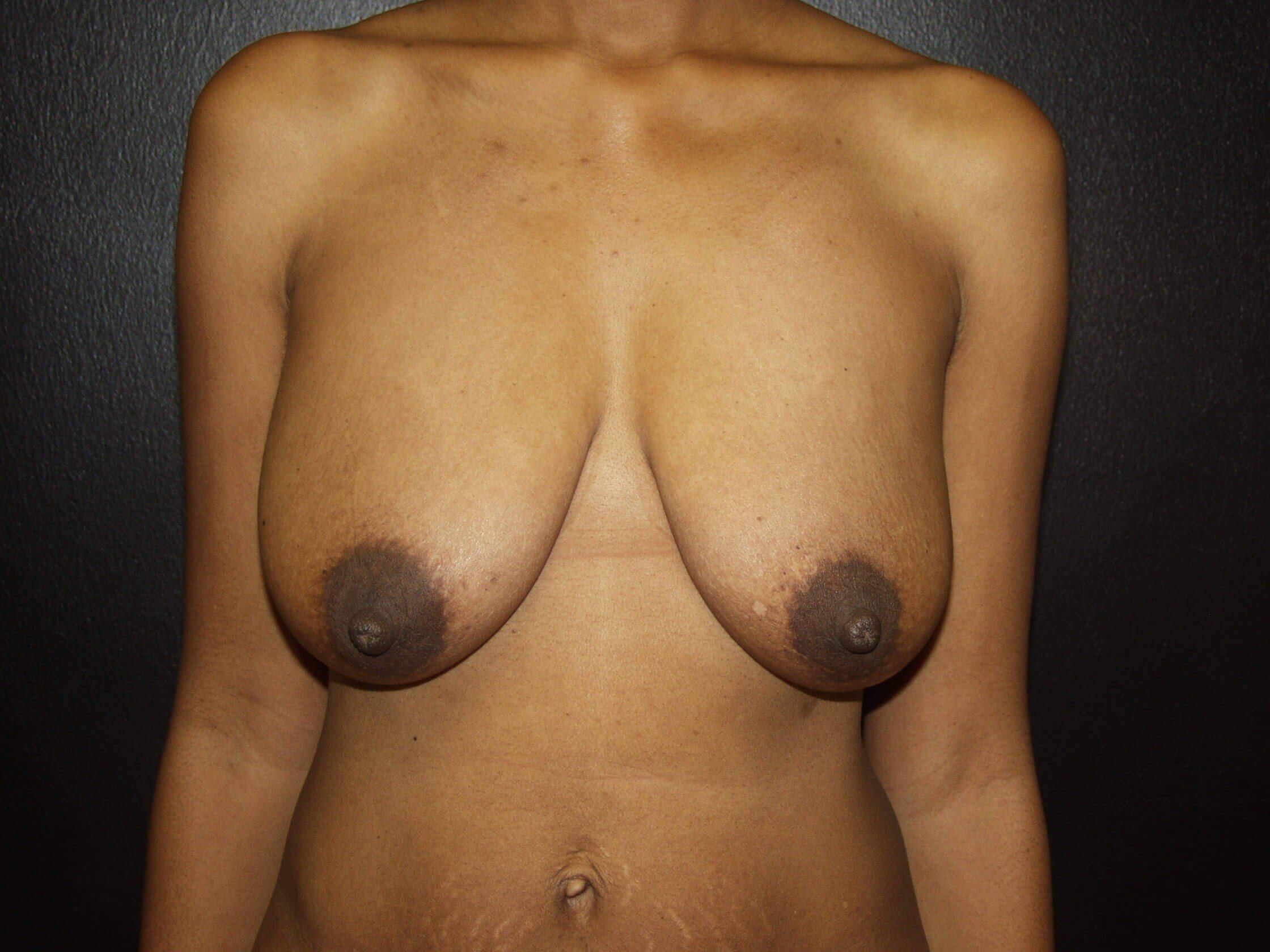 Front View Before Breast Lift