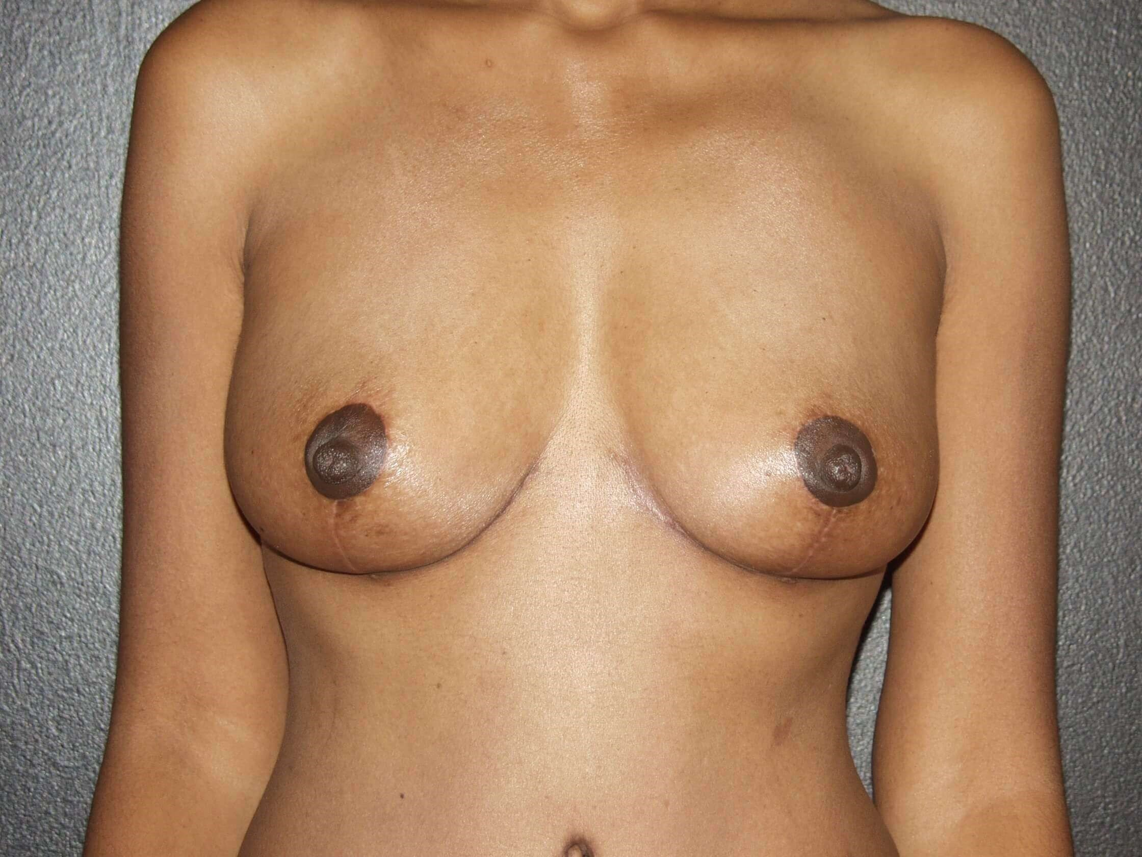 Front View After Breast Lift